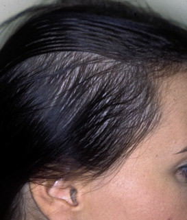 Hair Loss in Women, Diffuse Thinning