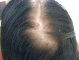 Dr Doris Day S Tips For Treating Thinning Hair And My